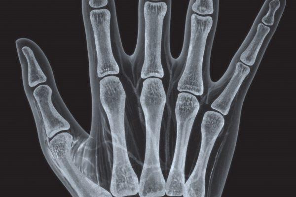 humira-hand1
