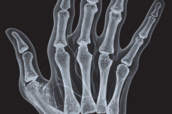 humira-hand2