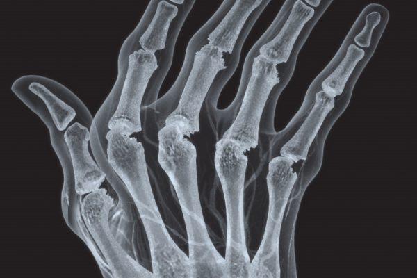 humira-hand3